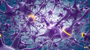 Down's syndrome 'linked to brain protein loss