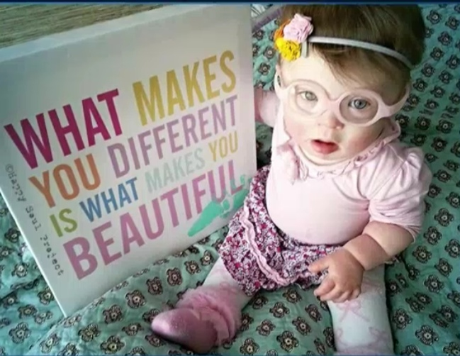 Mom of child with down syndrome starts